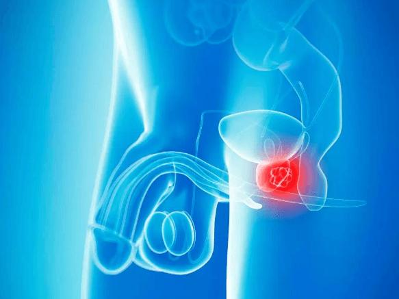 Problemy z prostatą